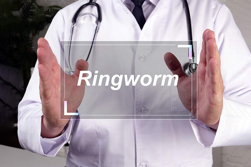 Causes And Preventive Measures To Treat Ringworm